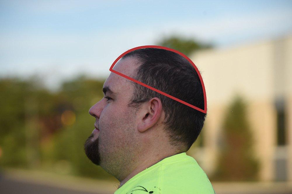 baseball cap area of the head