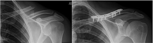 fractured clavicle
